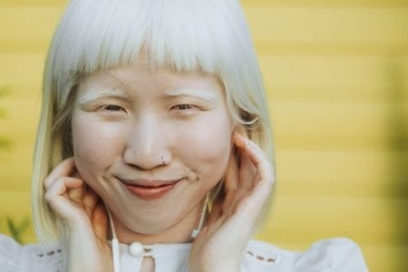 Albinism: Causes, Types, and Symptoms